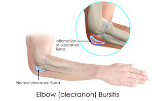 Elbow (Olecranon) Bursiti