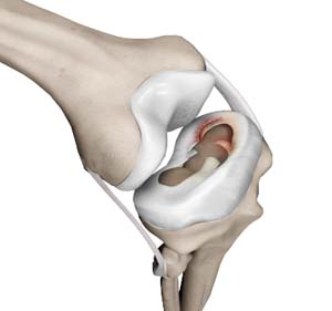Meniscal Injuries Denver | Knee Arthroscopic Surgery Lone